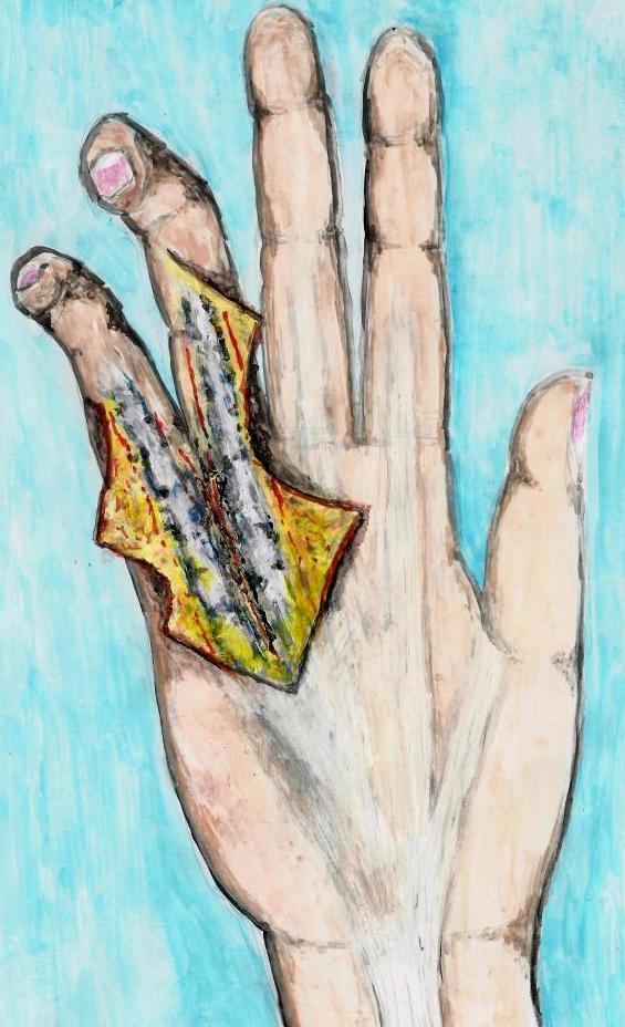 HandDupuytrenEntfernung