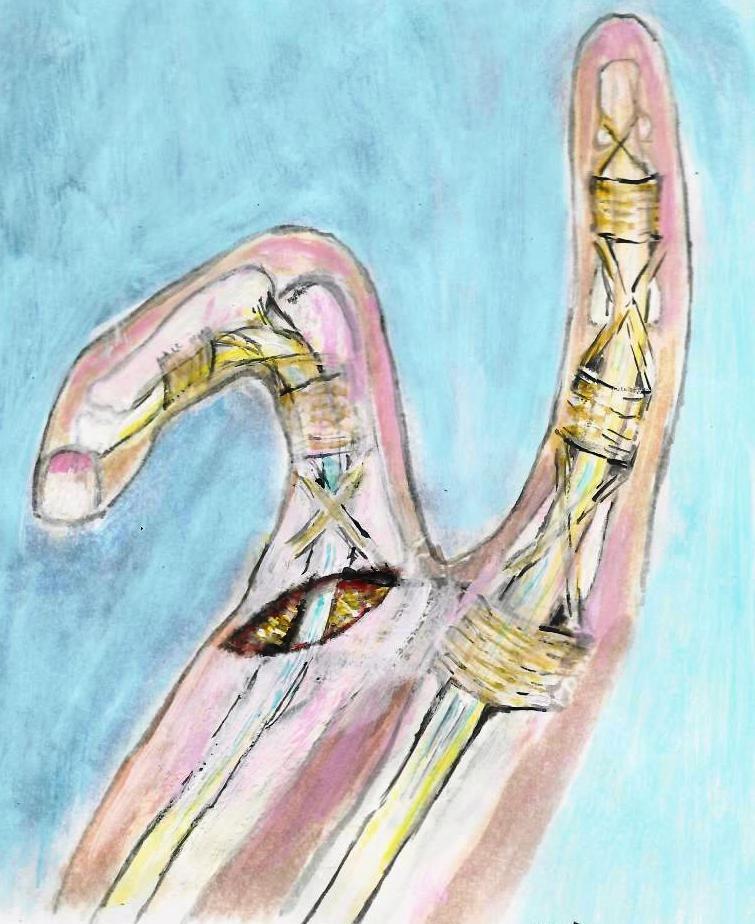 Hautschnitt für die Ringbandspaltung